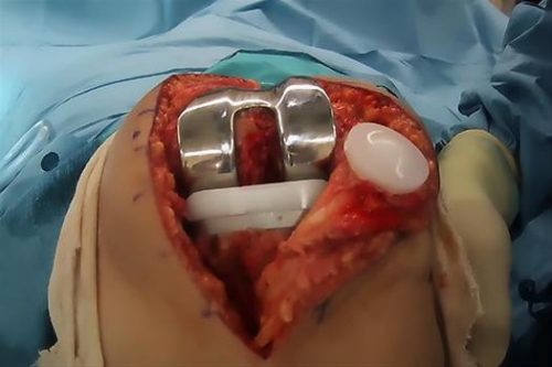 Joint replacement surgery.